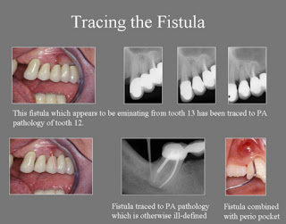 aae diagnosis, tracing the fistula, fistula, endodontics, root canal
