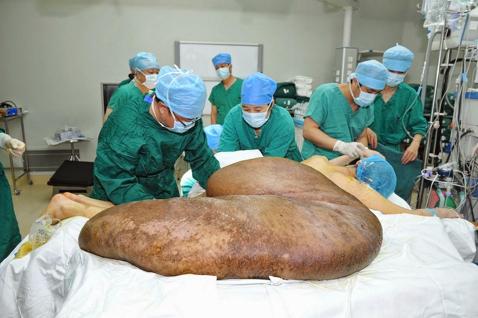 vulva mas grandes: