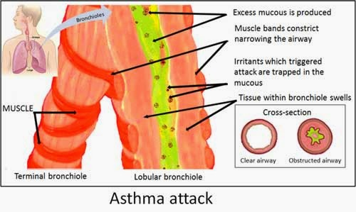 Causes and Process of Asthma Attacks