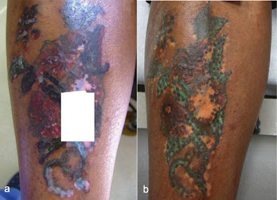 Laser tattoo removal in dark skin types tattoo removal for Tattoo turned black after laser