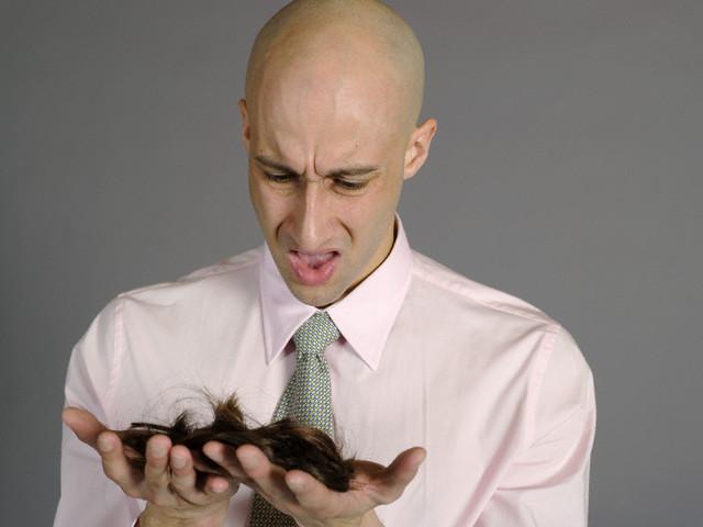 Как убрать сильное выпадение волос после родов