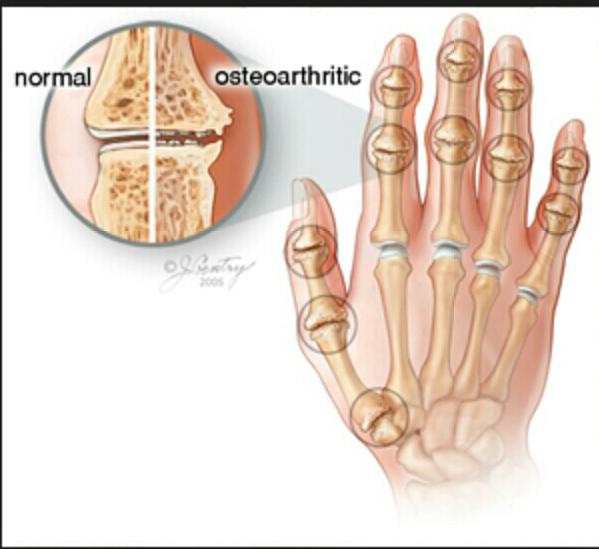 osteoarthritis-sakit-sendi-tangan-jari