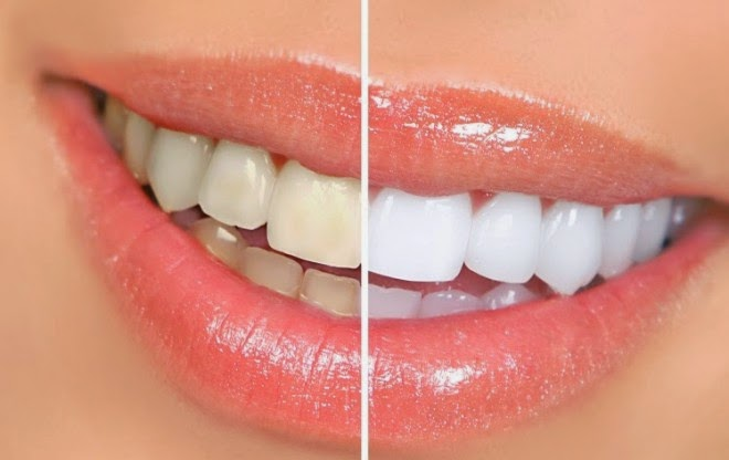 For a Beautiful Smile: 7 Natural Teeth Whitening Home Remedies