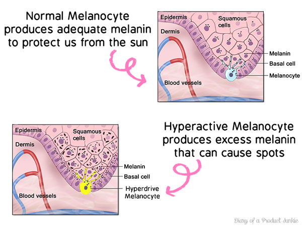 Melanocyte causing skin discoloration like sun spot
