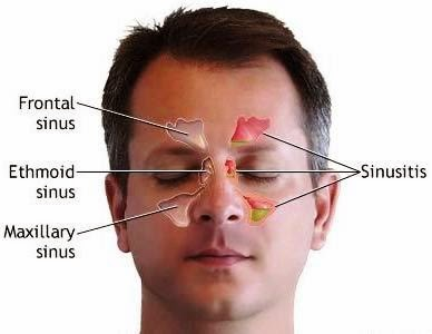 Congested Sinuses, Sinusitis