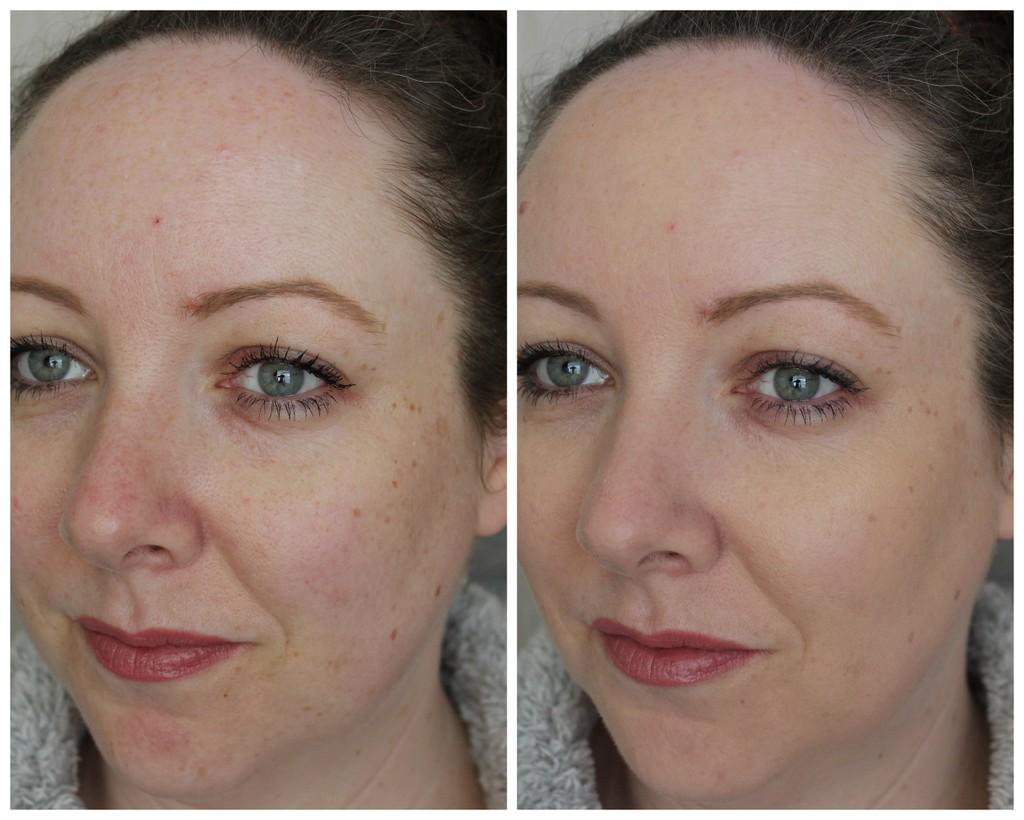 dermatologue cicatrice acné glaçons