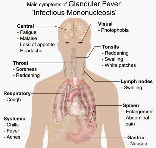 Symptoms Of Glandular Fever, Infectious Mononucleosis