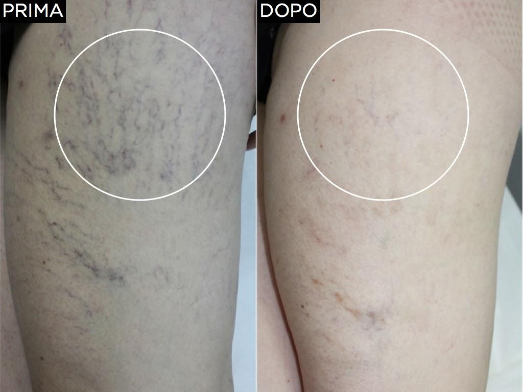 Tintura per gambe da varicosity