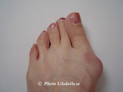 hallux valgus, halluxvalgus-operation