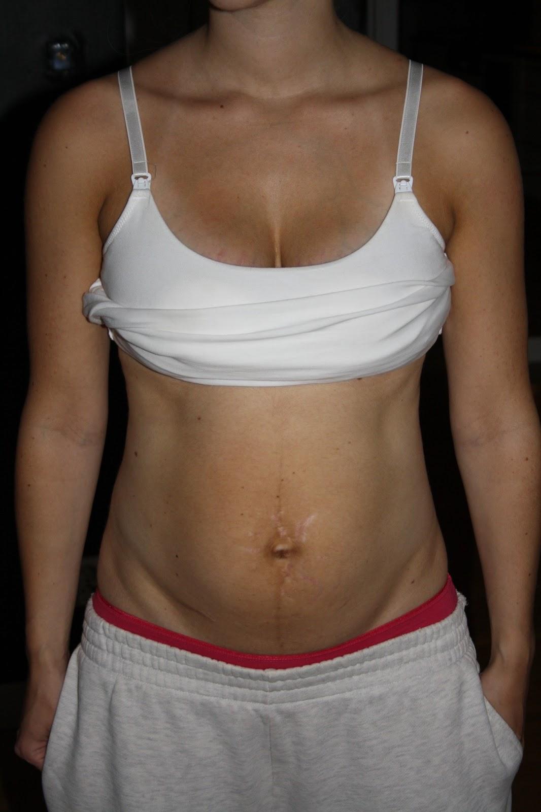 ont i magen efter graviditet