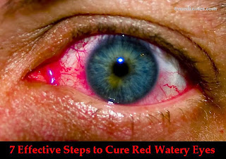 7 Effective Steps to Cure Red Watery Eyes