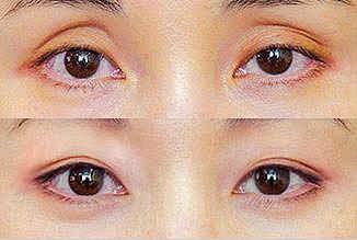 Lipatan Mata