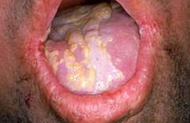 El medio profiláctico de las lombrices para el niño 2 años