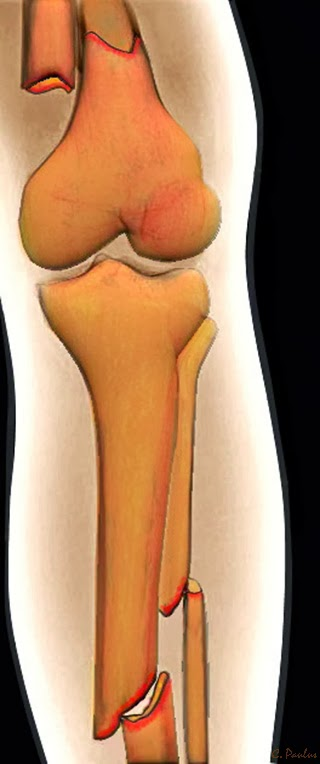 3-D Color X-Ray of a Fracture of the Femur/Tibia/Fibula
