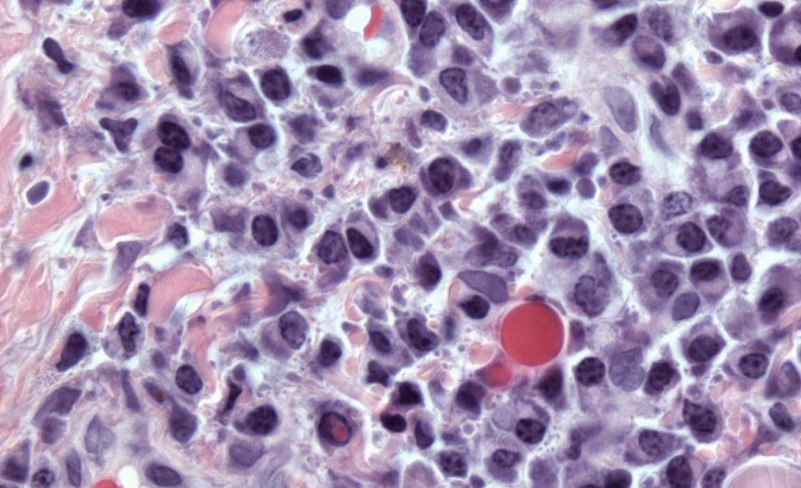 Lisosomas, peroxisomas y vacuolas