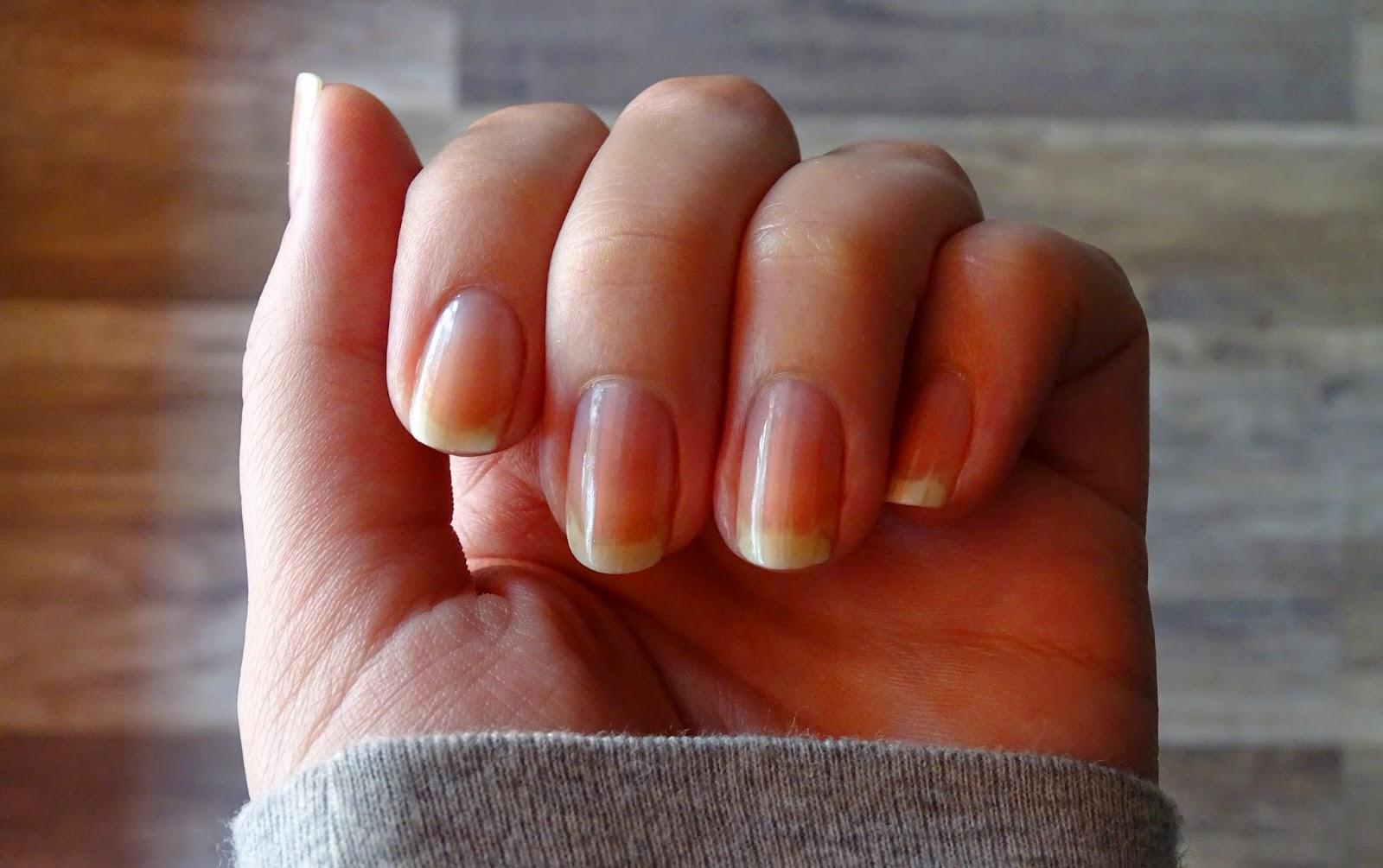 lakier hybrydowy niszczy paznokcie