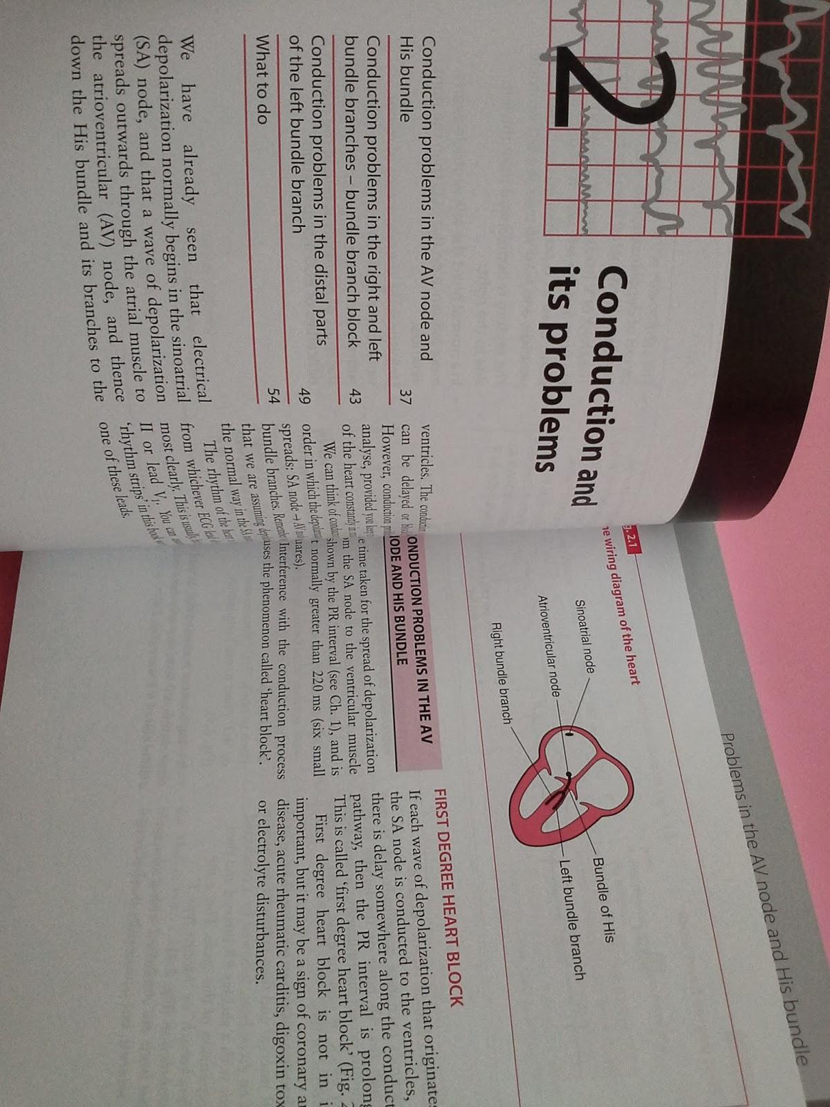 ecg made easy john hampton pdf