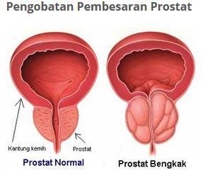 Tips Pengobatan Kelenjar Prostat Secara Alami