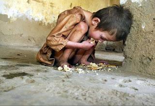 5 kasus kelaparan paling parah di dunia