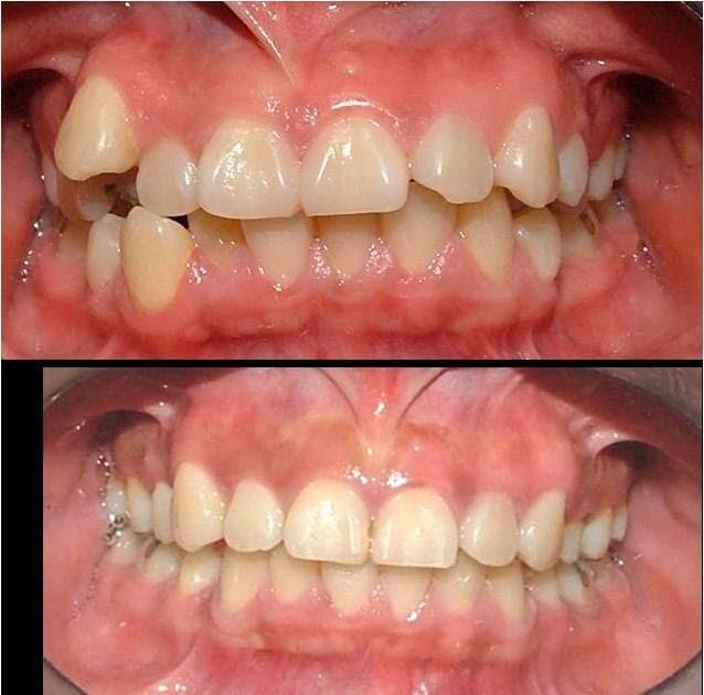 Tratamientos dentales la relaci n entre la malposici n for W de porter ortodoncia