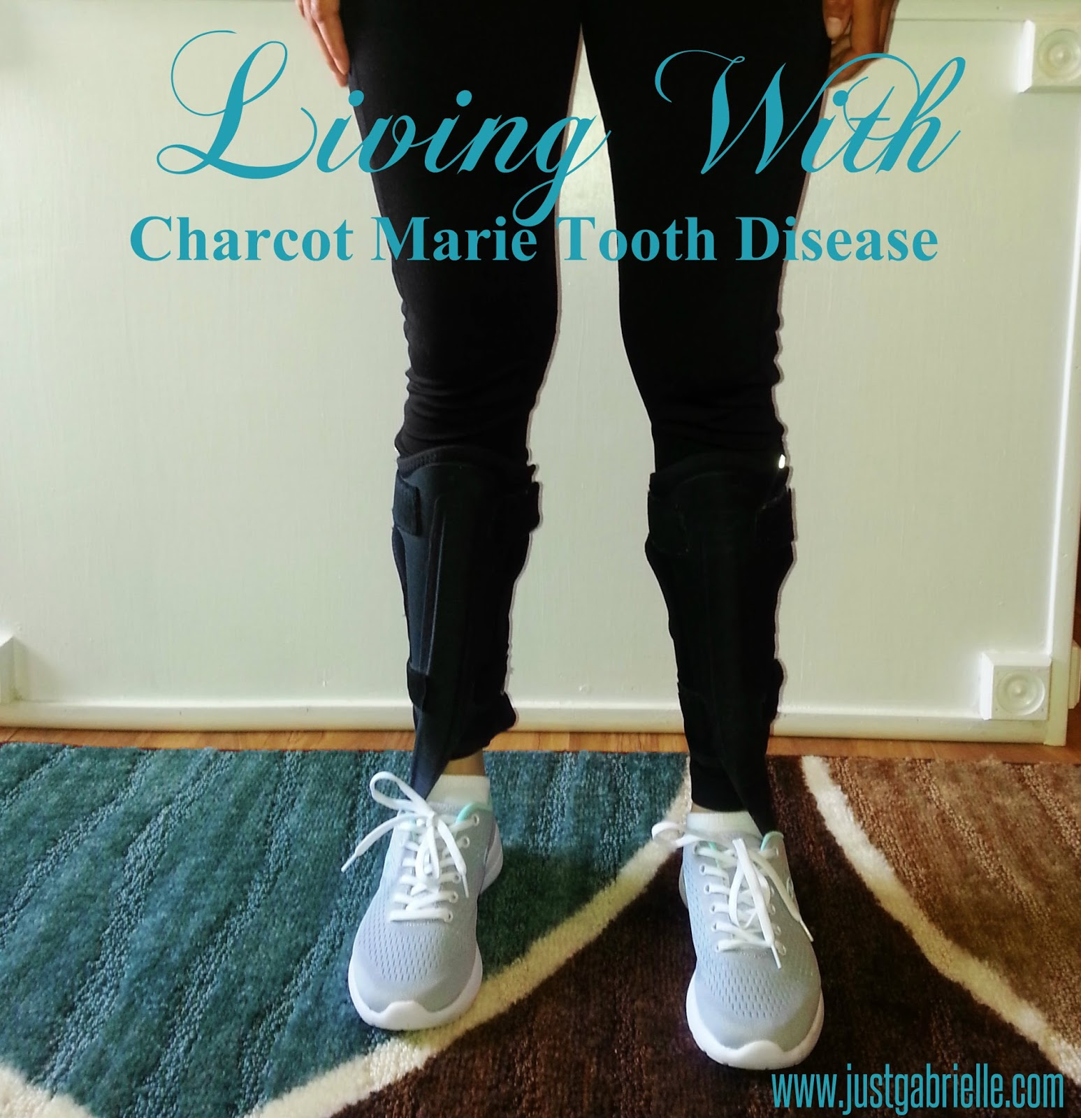 what is charcot marie tooth disease 601472 - charcot-marie-tooth disease, axonal, type 2d cmt2d - charcot-marie-tooth disease, neuronal, type 2d charcot-marie-tooth neuropathy, type 2d.