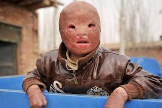 Bocah Tanpa Wajah Dari China