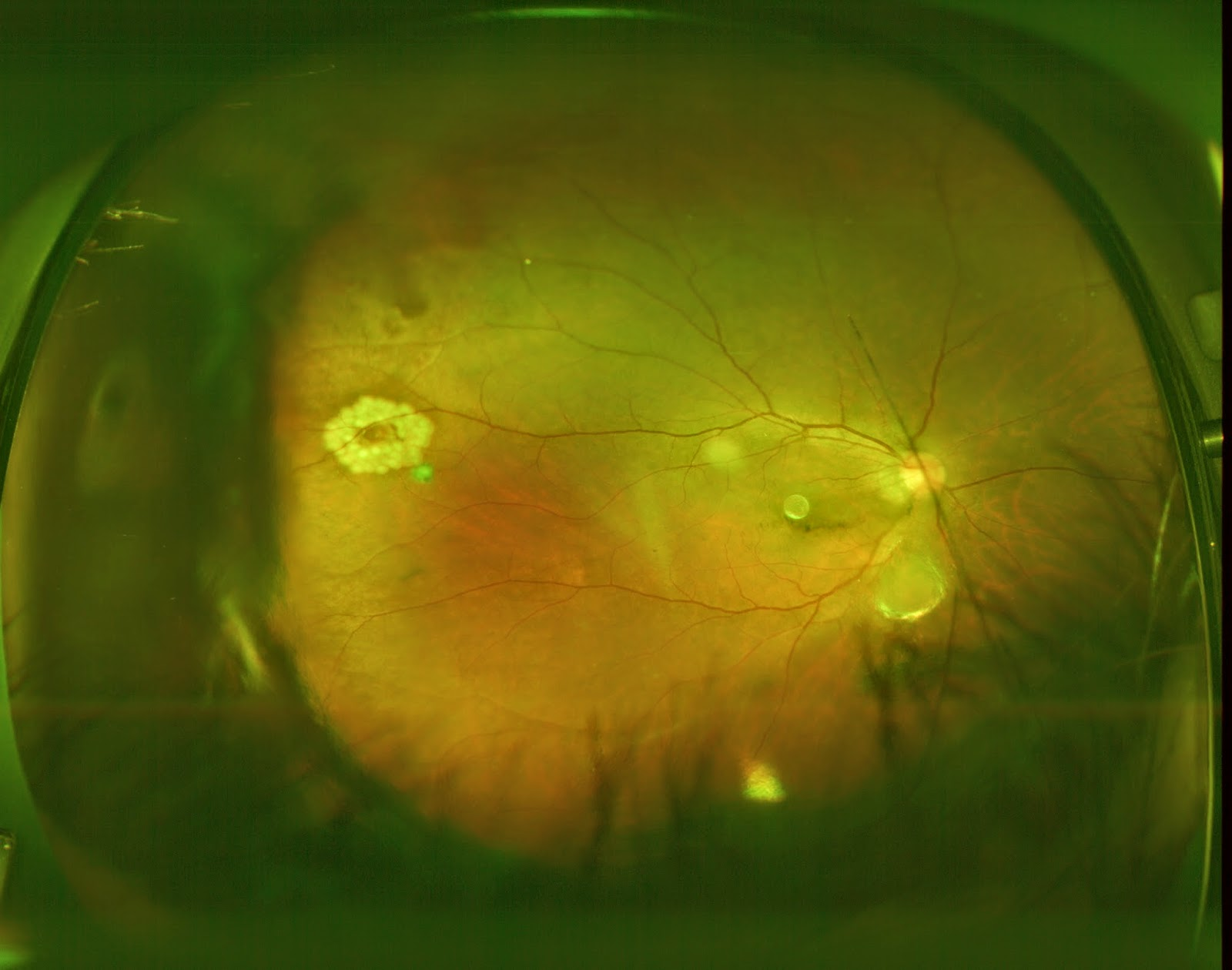 A retinal hole after laser treatment