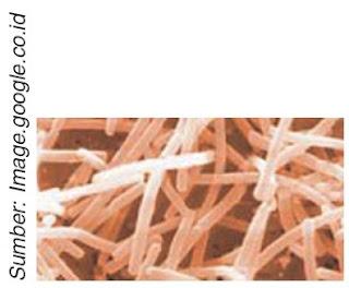 Lactobacillus bulgaris