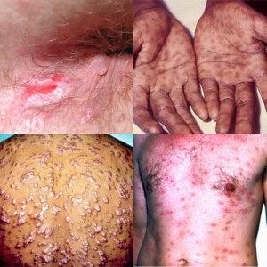 sifilis itu apa,sifilis penyakit yang membahaya kan