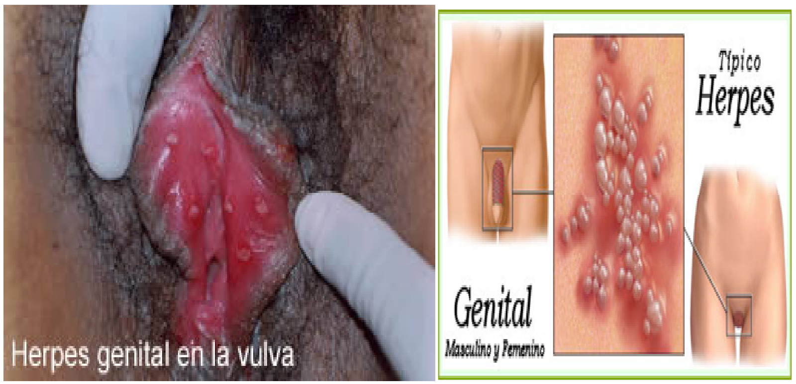 del Herpes Zóster; Herpesvirus varicellae; Herpesvirus Humano Tipo ...