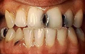 Informasi Mengatasi Sakit Gigi dan Gigi Berlubang
