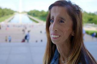Miris Banget, Perempuan Ini Dipanggil Wanita Paling Buruk Rupa di Dunia