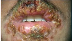Penyakit herpes Pada Mulut