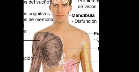 fibromialgia,