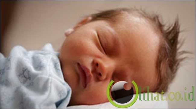 Bayi Terlahir Cacat