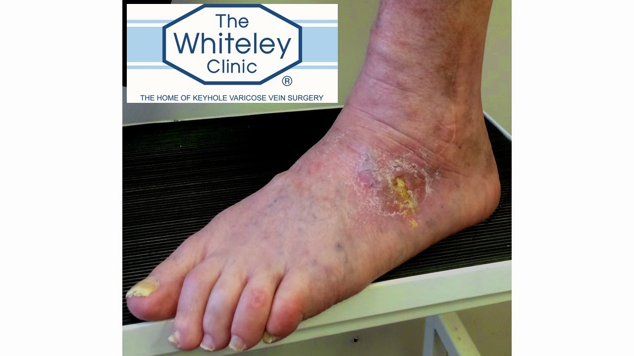 Venous foot ulcer - bled twice before cured by The Whiteley Protocol (TM)