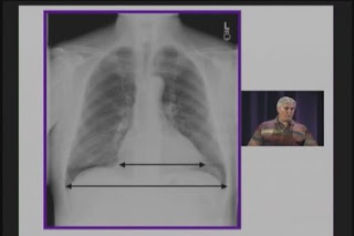 Medstudy 2005 Video Board Review of Internal Medicine - Nephrology Video NEPHROLOGY+MEDSTUDY