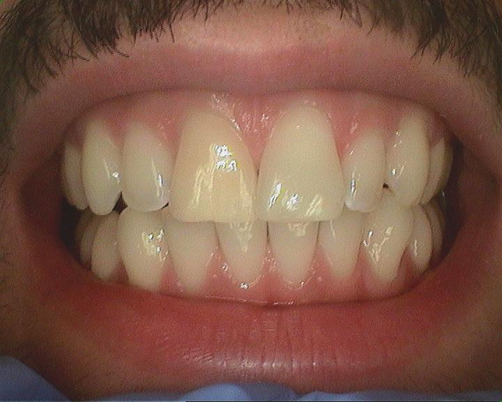 Aria Dental: My tooth had a root canal... Is my tooth dead?