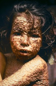 child_with_smallpox_bangladesh.jpg