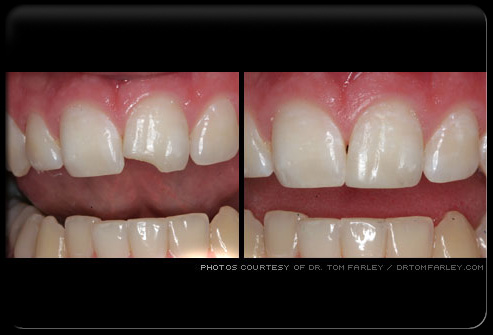 how to fix overbite using crowns
