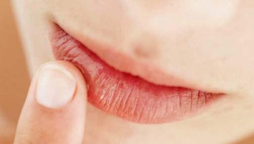 cara mencegah bibir kering dan pecah pecah
