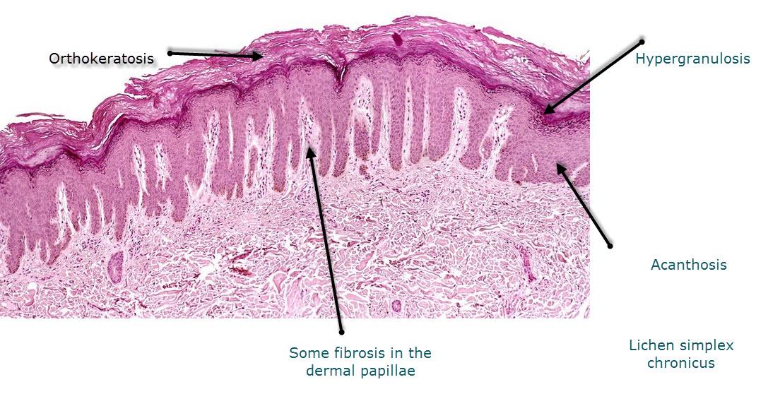 Orthokeratosis definition | Drugs.com