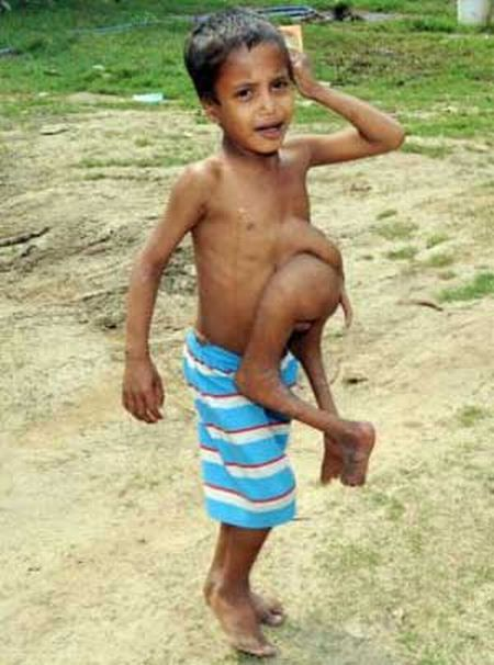 Indian Boy With Parasitic Twin