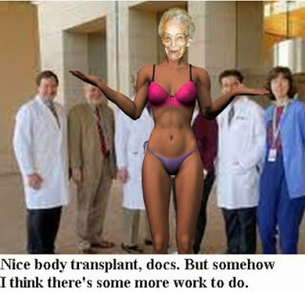 body transplant