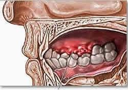 Obat Kanker Mulut Herbal