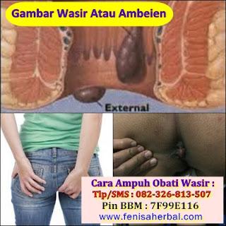Gejala Ambeien Stadium 3 - 4 _ Cara Mengobati Ambeien Tanpa Operasi Di Palembang. Hub : 082326813507