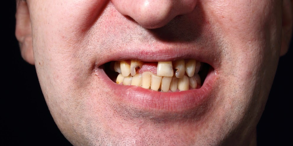 Descubra o que causa o amarelamento dos dentes