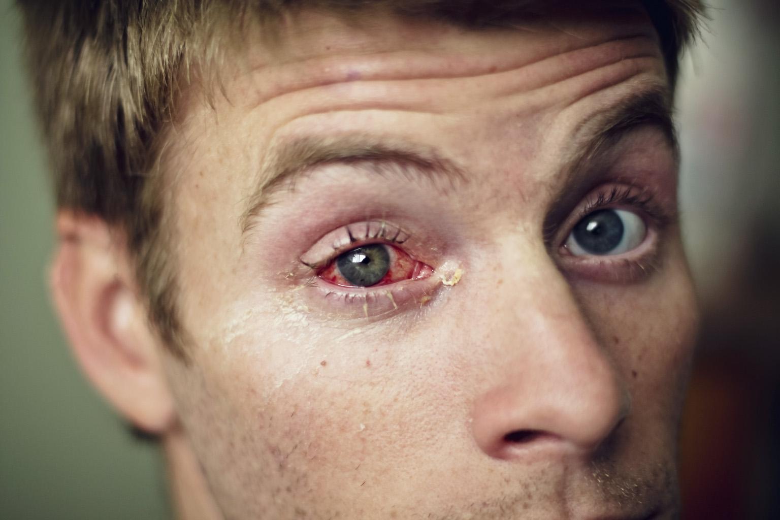 The Grand Life: Cincinnati Eye Surgery