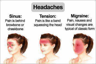 Penyebab sakit kepala berdasarkan jenis-jenisnya