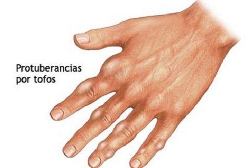 valores normales de acido urico en las mujeres alimentos que ayudan contra el acido urico valores de referencia del acido urico en orina